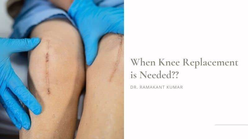 When Knee Replacement is Needed