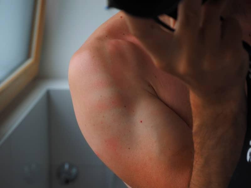 dangers of severe sunburn